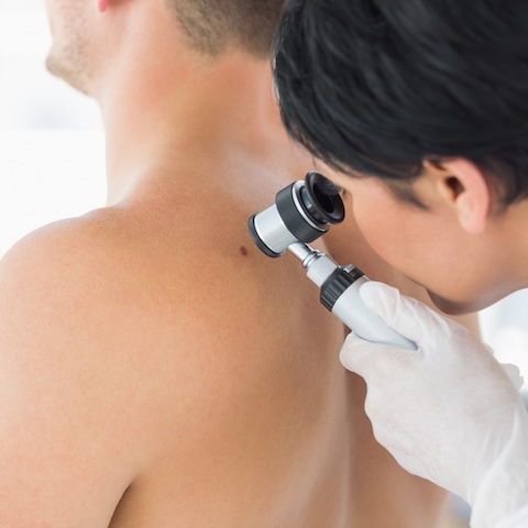 skin-check